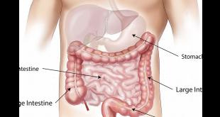 אבחון וטיפול בסרטן המעי הגס